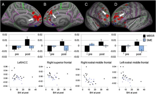 Functional connectivity between the seed region in the right amygdala and several regions in the frontal cortex increased from pre- to post-intervention in GAD patients who underwent the MBSR program (N = 15), but not in those who underwent the SME class (N = 11). Anatomical location displayed on an inflated surface with FreeSurfer cortex parcellations (top row), regression coefficients extracted from the clusters from the MBSR (black) and SME (blue) participants at pre- and post-interventions (middle row) and scatter plots of regression coefficients (y-axis) and Beck Anxiety Inventory (BAI, x-axis) for MBSR and SME participants at post (bottom row) for the left rostral anterior cingulate cortex (ACC, column A, pre- to post increase in connectivity: p = 0.0002, multiple comparison corrections within mask of the frontal cortex/insula; correlation with BAI scores: ρ = − .229, ns, uncorrected), right superior frontal cortex (column B, pre–post increase: p = 0.04; correlation: ρ = − .470, p = .015), right rostral middle frontal cortex (column C, pre–post increase: p = 0.03; correlation: ρ = − .572, p = .002), and left rostral middle frontal cortex (column D, pre–post increase: p = 0.01; correlation: ρ = − .646, p < .001).